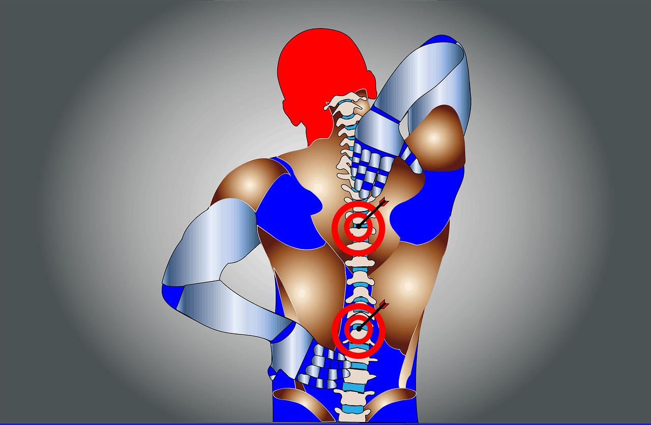 חוליה בגב